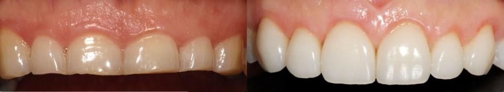 Αποκατάσταση της φθαρμένης οδοντοφυΐας - Προχωρημένη σύγκλειση